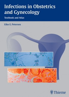 View Details for Infections in Obstetrics and Gynecology