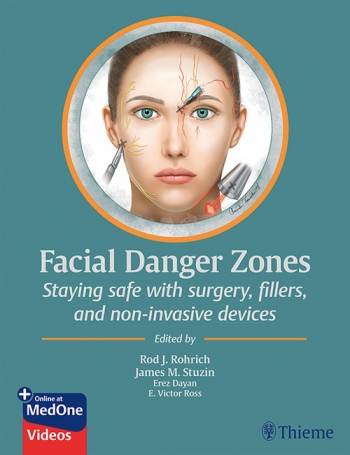 View Details for Facial Danger Zones