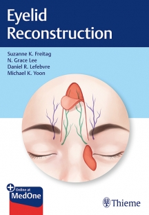 View Details for Eyelid Reconstruction