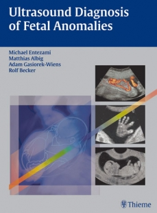 View Details for Ultrasound Diagnosis of Fetal Anomalies