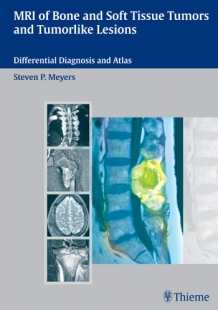 View Details for MRI of Bone and Soft Tissue Tumors and Tumorlike Lesions