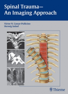 View Details for Spinal Trauma - An Imaging Approach (eBook)