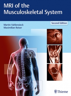 View Details for MRI of the Musculoskeletal System
