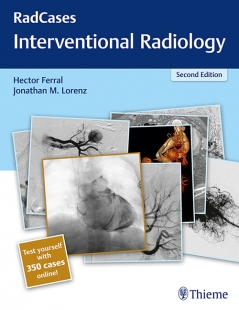 View Details for Radcases Interventional Radiology