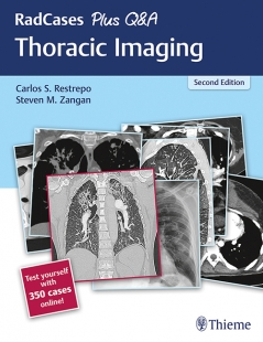View Details for RadCases Plus Q&A Thoracic Imaging