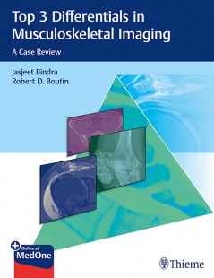 View Details for Top 3 Differentials in Musculoskeletal Imaging