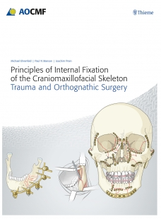 View Details for Principles of Internal Fixation of the Craniomaxillofacial Skeleton